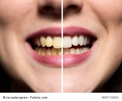 Eine strahlendes Lächeln dank Zahnreinigung